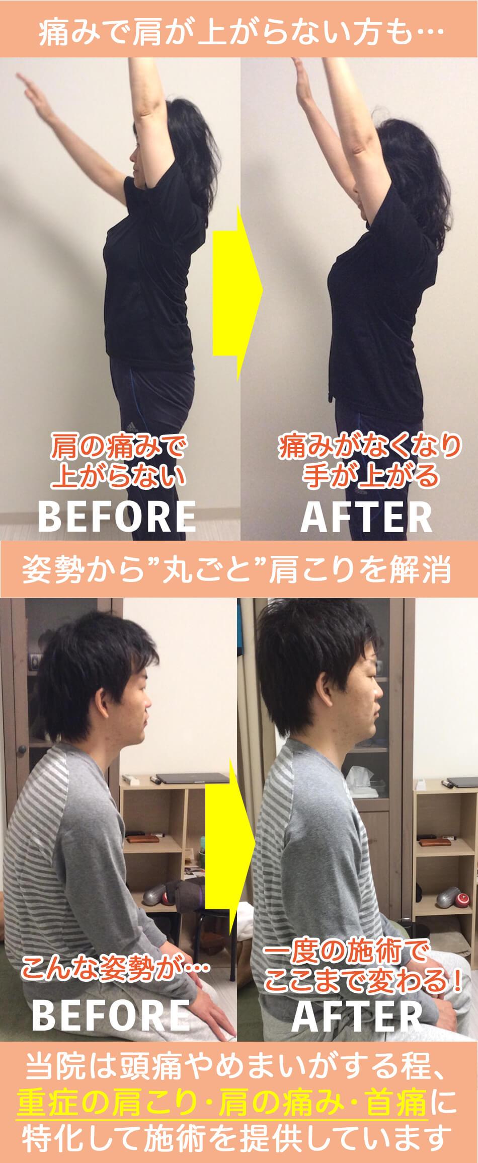 痛みで肩が上がらない方や姿勢が惡い方もこんなに変化します